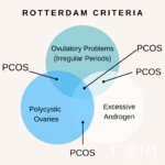Polycystic Ovarian Syndrome and the Rotterdam Criteria